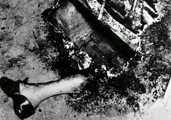 Combustiones espontaneas, el fuego de la muerte Combustion2