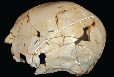 Cráneo reconstruido del menor con craneosinostosis de Atapuerca.