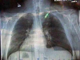 Jesus_x-ray