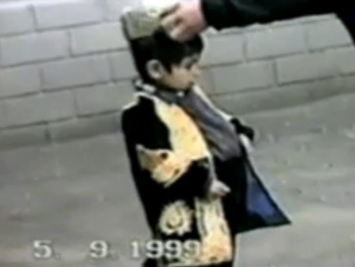 Historias increíbles. El niño que vivió siete años embarazado.