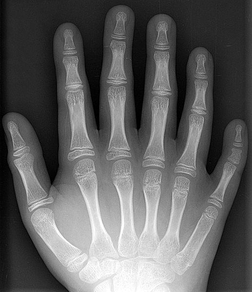 Gente con 6 dedos