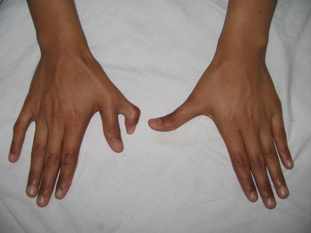 Cada vez nacen más bebés con 6 dedos o más(para teclear m