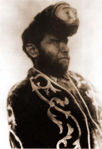 Pasqual Pinon, el bicéfalo Mexicano.