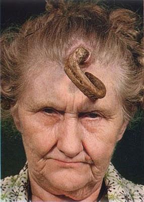 El suero a la tía anti el acné