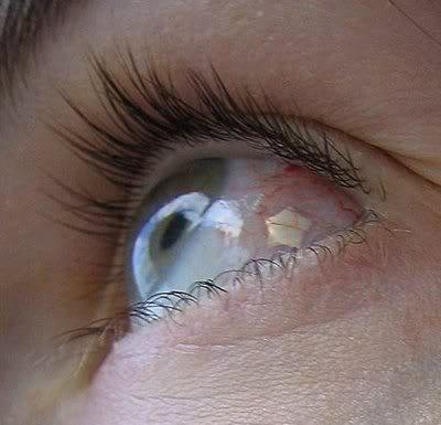 tatuajes ocular. Fuente: http://tejiendoelmundo.wordpress.com/2010/03/28/tatuajes-oculares-y-