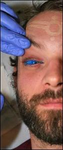 Tatuajes oculares y joyas en la córnea