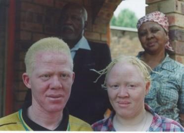 asesinato_de_albinos.jpg?w=372&h=272