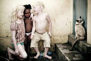 La desgracia de ser albino en Tanzania.