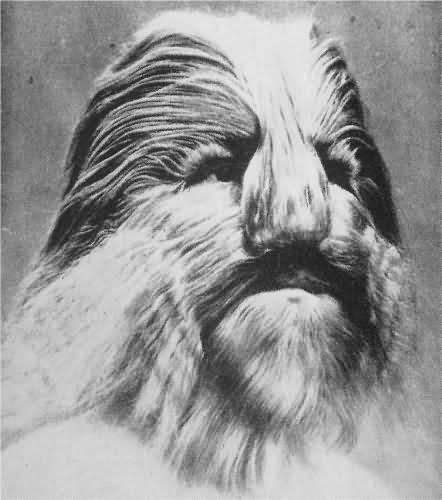 Stephan Bibrowsky, el hombre con cara de león.