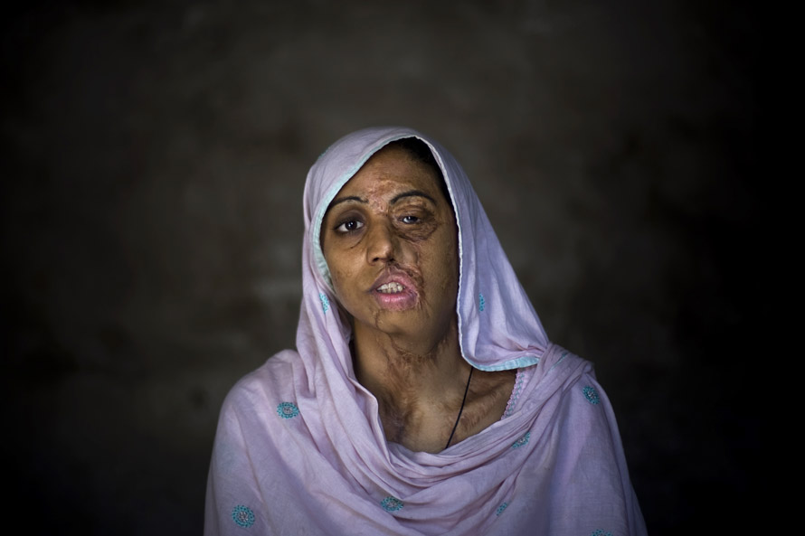 Acid Attacks On Women