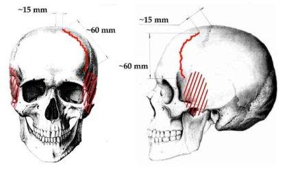 El ajuste circular de la persona gomel